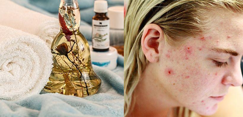 Pentingnya memilih skincare dan kosmetik yang aman untuk kesehatan